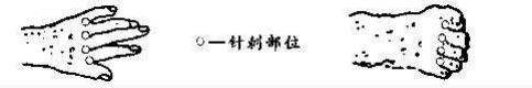 季德胜蛇药片.jdssyp.